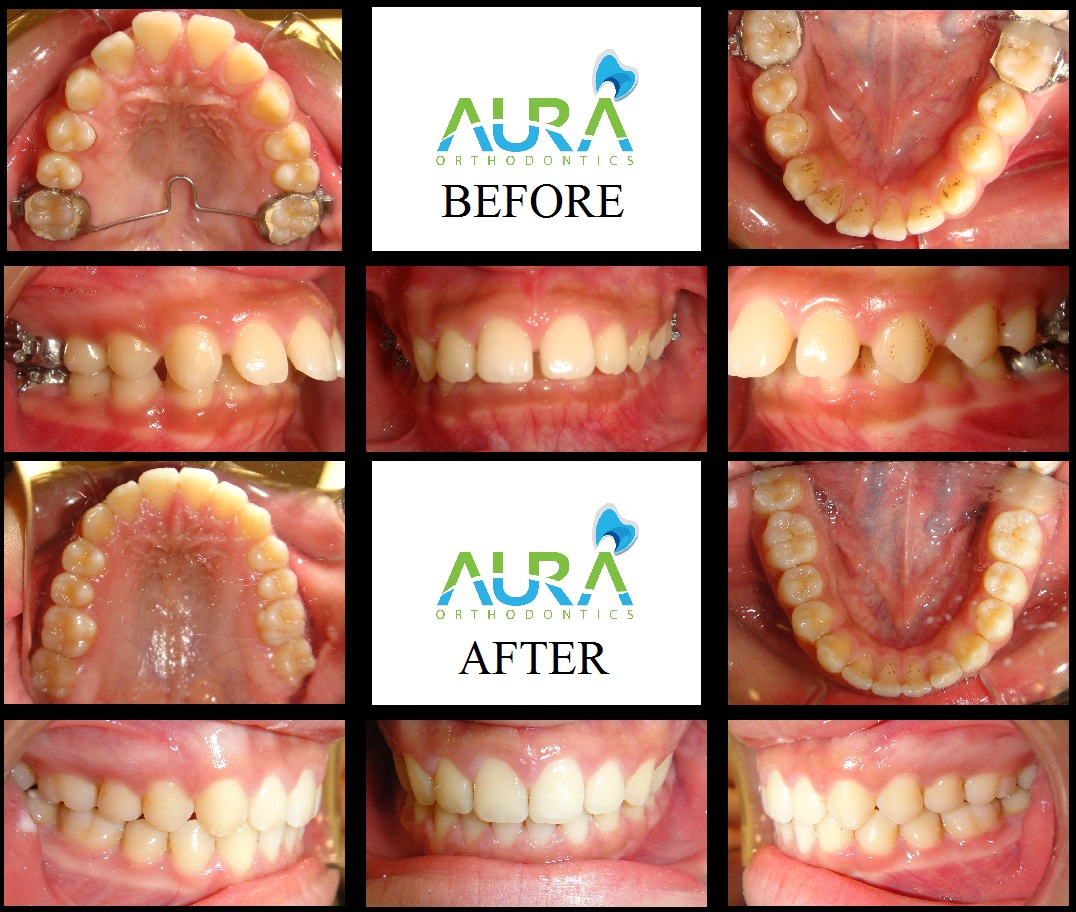 Before And After Pictures Aura Dental Specialists